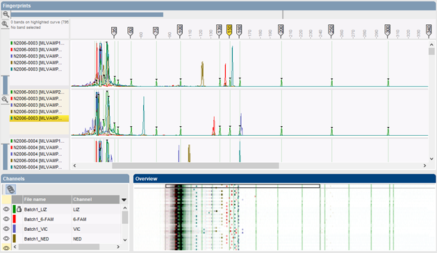 Electropherograms in Curve processing window