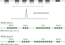 MIRU-VNTR analysis